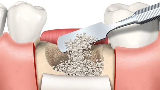 greffe osseuse implant dentaire
